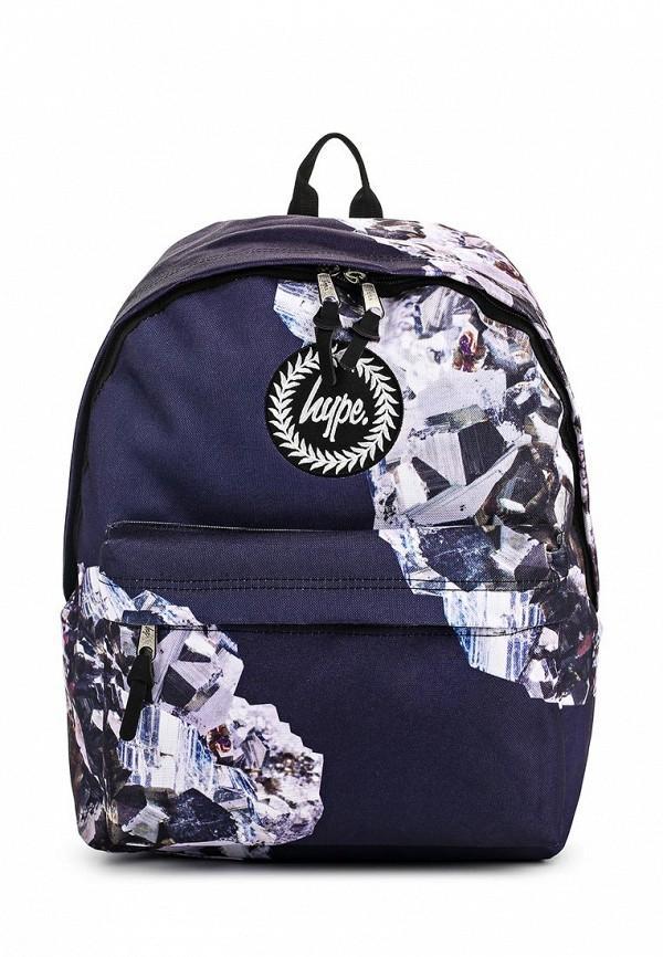Городской рюкзак Hype SS17-20005